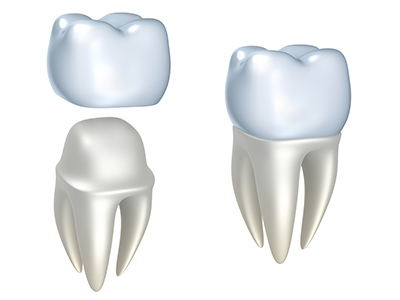 Dental Crown Arrowhead Oral and Maxillofacial Surgery AZ 85308