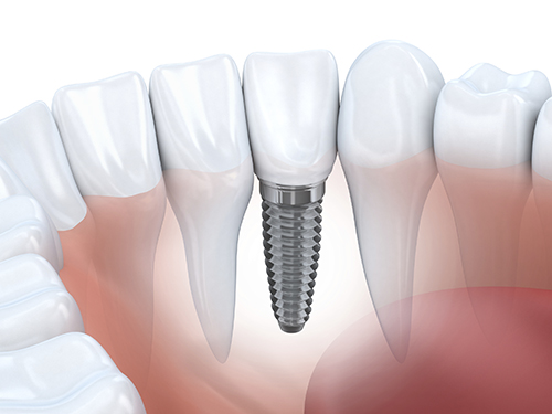 Dental Implants Arrowhead Oral and Maxillofacial Surgery AZ 85308