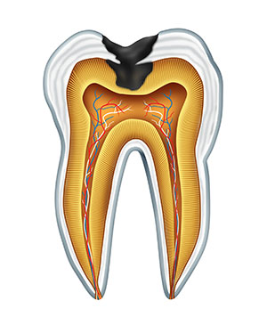 Diagram of a tooth with tooth decay used by Glendale oral surgeon at Arrowhead Oral and Maxillofacial Surgery.