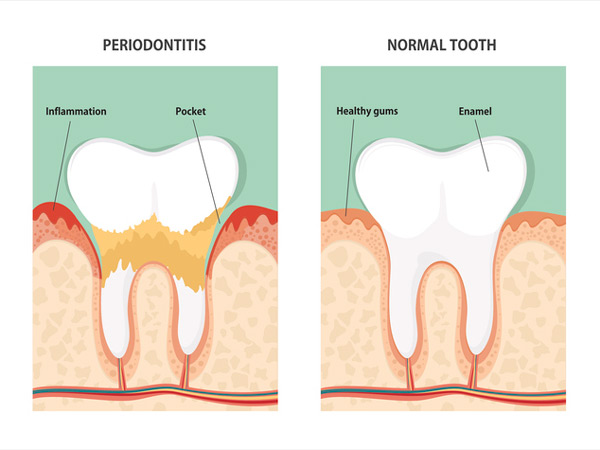 Image of periodontitis and normal tooth at Arrowhead Oral and Maxillofacial Surgery.